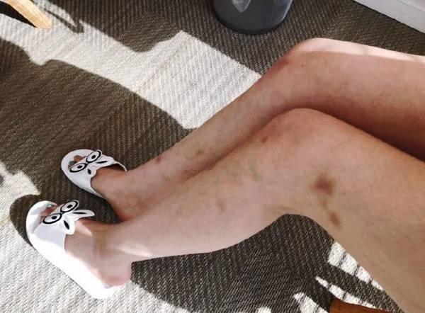 林允双腿淤青是怎么回事 背后真相是什么