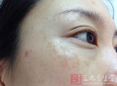 眼角长黄褐斑怎么治疗 祛斑必看这样做才能真正祛斑