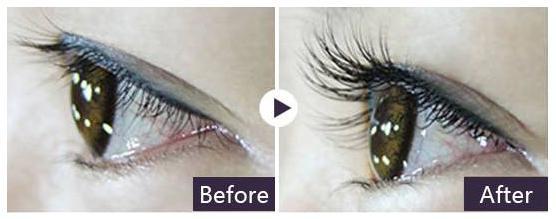 种睫毛要种到根部吗 眼皮上就行 种睫毛能保持多久