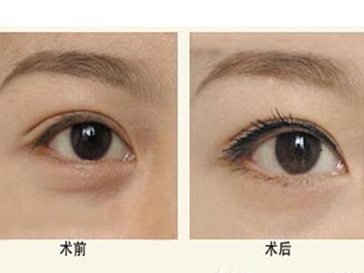 内切眼袋多久恢复 内切眼袋术后注意事项